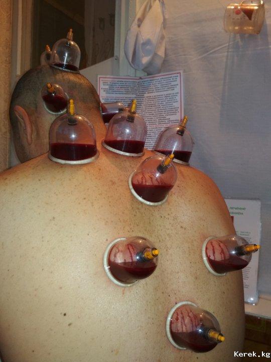 Кровопускание при простатите в каких санаториях лечат простатит